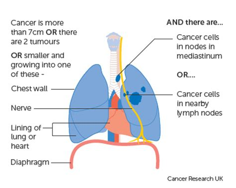 Research report on lung cancer symptoms