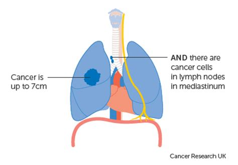 Lung cancer: Not just a smoker s disease - American Nurse